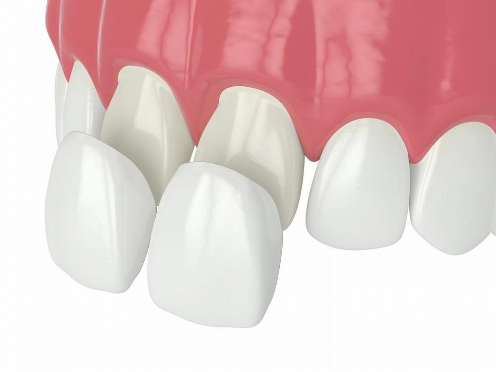 前歯の見た目が気になる方
