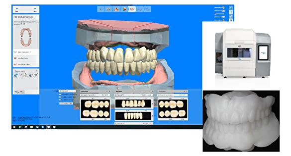 当院のデジタル義歯とは