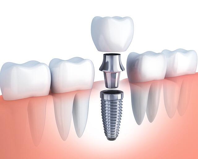 天然歯のような嚙み心地のインプラント治療