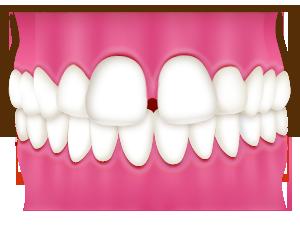 空隙歯列 (くうげきしれつ)