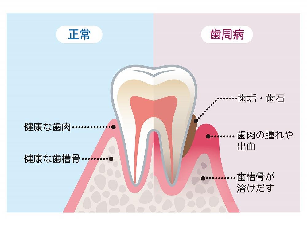 自覚症状の少ない歯周病