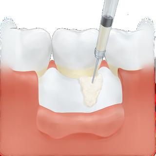 外科手術を伴わない歯周組織再生療法