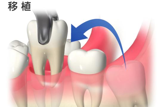 自家歯牙移植とは?