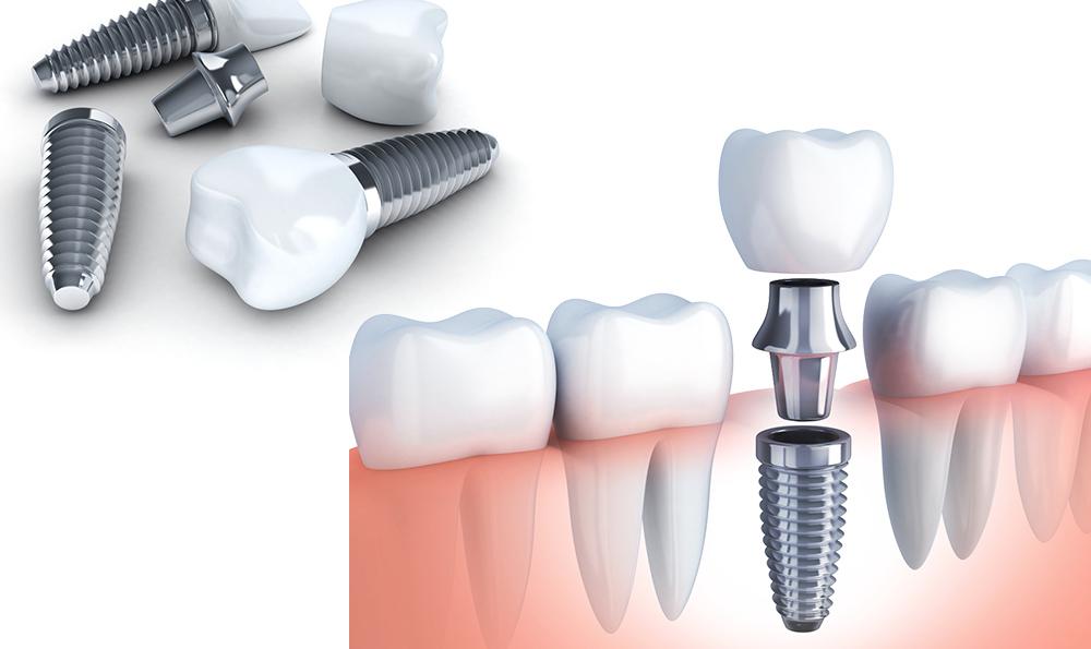 天然歯のような噛み心地インプラント治療